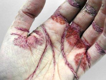 بالصور فتاة بريطانيا تخيط كف يدها بخيوط ملونة