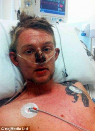 بالصور ماذا حدث لهذا الرجل بسبب إبرة آيبروفين للإنفلونزا