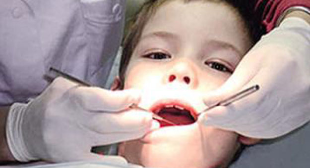 7 نصائح مهمة بعد خلع الاسنان