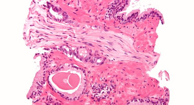 اكتشاف علاج جديد لمرضى سرطان البروستاتا