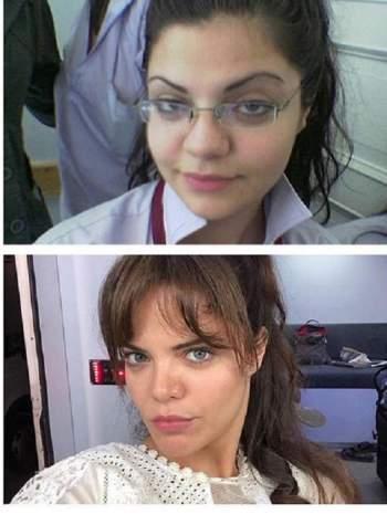 صور الممثلة التركية هلال ألتنبيليك بطلة مسلسل مرارة الحب 2020 قبل عمليات التجميل
